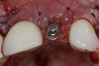 EXTRACTION IMPLANTATION IMMEDIATE